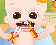 Bebeğe Diş Bakımı