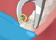 Dişçi Oyunu