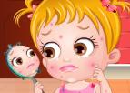 Hazel Bebek Cilt Sorunları