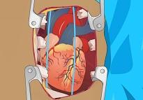 Kalp Ameliyatı - Türkçe