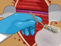 Kalp Pili Ameliyatı - Türkçe