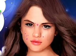 Selena Gomez Sivilce Patlatma