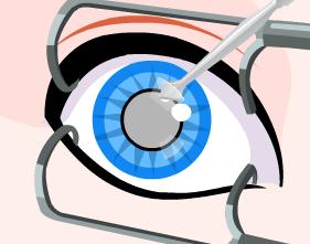 Sindirella Göz Ameliyatı